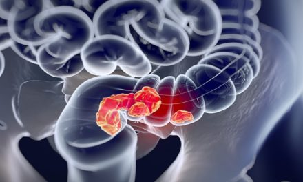 Cancer colorectal : Facteurs de risque et prévention