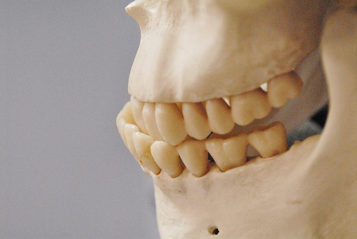 Dents mal alignés et maux de tête