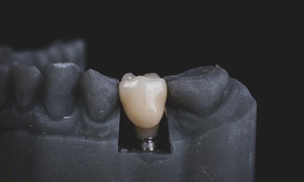 Implants dentaires, prix pratiqués par les cliniques dentaires en Hongrie